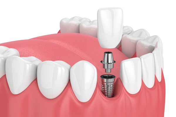 Diagram of a single dental implant.
